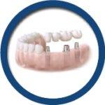 implant-img2