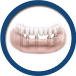 implant-img3